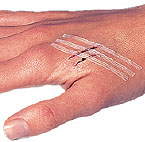 Wound Closure Strips